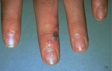 signs of herpes on penis
